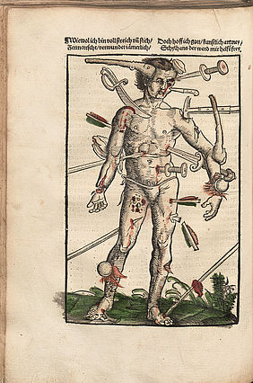 Hans von Gersdorff: Feldbuch der Wundarznei. Wundenmann. (Field book on treating wounds. The wounded man.) Strasbourg: Johannes Schott, 1517 | © BSB – Passau, State Library, classification mark Inc. 320